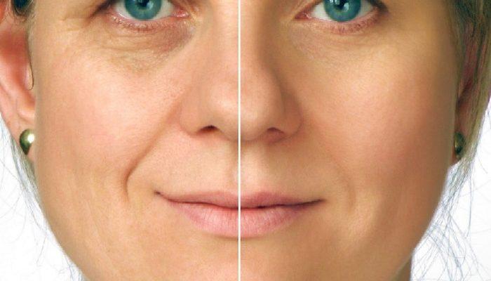 Фото до и после косметолога в Краснодаре
