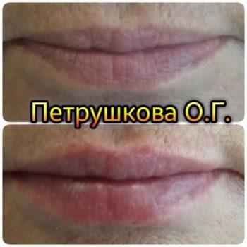 Пластика губ в Краснодаре