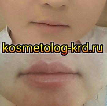 Увеличение губ. Краснодар.