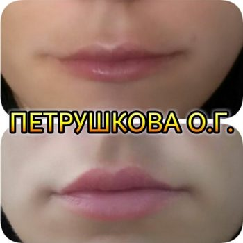 Коррекция губ в Краснодаре