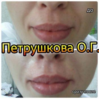 Коррекция носогубных складок у косметолога в Краснодаре. Тел. 8 909 448-32-33