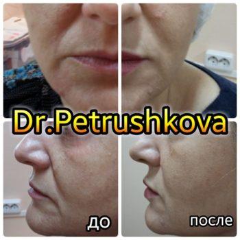 Коррекция носогубных складок гиалуроновой кислотой в Краснодаре.