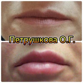 Цена на увеличение губ