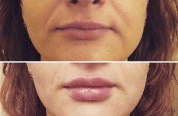 Увеличение губ у косметолога