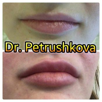 Фото увеличения губ