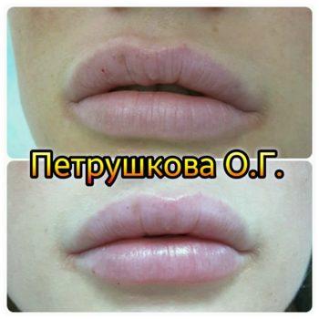 Увлажнение губ в Краснодаре