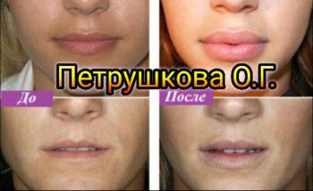 Увеличение губ в Краснодаре