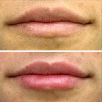 естественное увеличение и увдажнение губ в Краснодаре