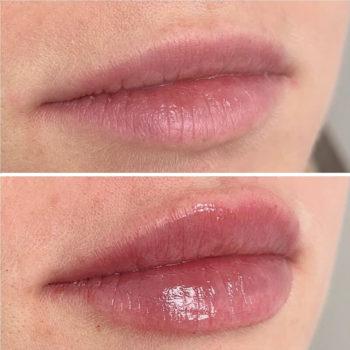 Естественное увеличение и увлажнение губ в Краснодаре