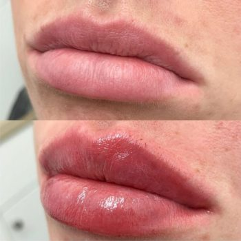 Контурная пластика губ в Краснодаре