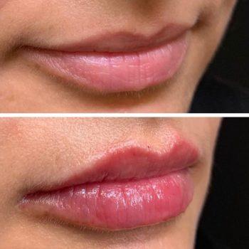 Увеличение губ филлерами в Краснодаре