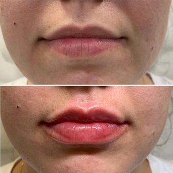 Увеличение губ по контуру в Краснодаре