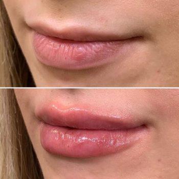 Увеличение губ в Краснодаре филлером Ювидерм Волбелла