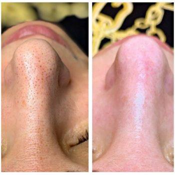 Чистка лица ультразвуком фото до и после