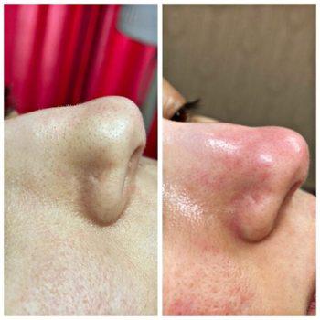 Ультразвуковая чистка лица до и после