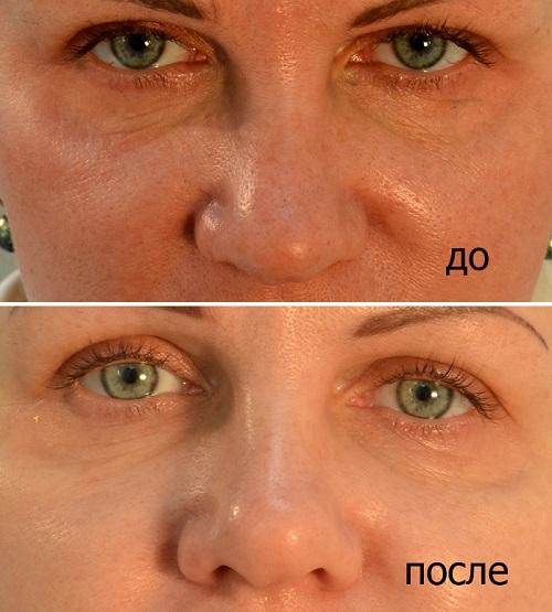 Атравматическая чистка лица в Краснодаре. Тел. 8 909 448-32-33