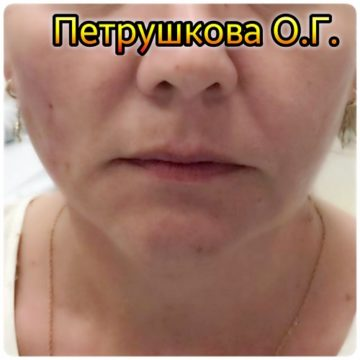 плеяна отзывы косметологов