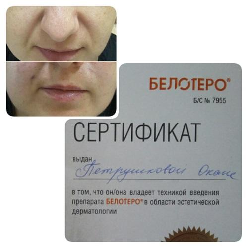 Коррекция носогубных складок фото до и после. Краснодар.