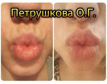 Ксеомин в губы в Краснодаре
