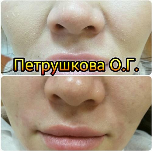 Коррекция носогубных морщин. Краснодар. Запись по тел. 8 909 448-32-33