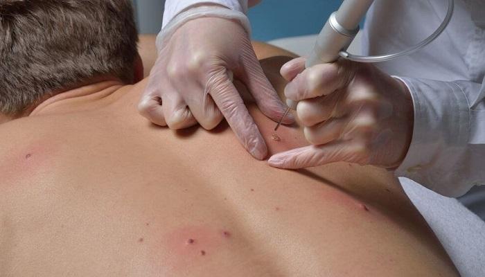 Лазерное удаление бородавок в Москве — лучшие клиники и медцентры: отзывы, врачи, цены