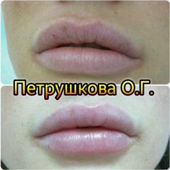 Увлажнение губ. Краснодар.