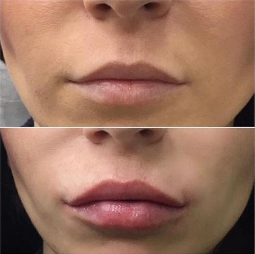 Коррекция формы губ в Краснодаре косметолог Оксана Петрушкова
