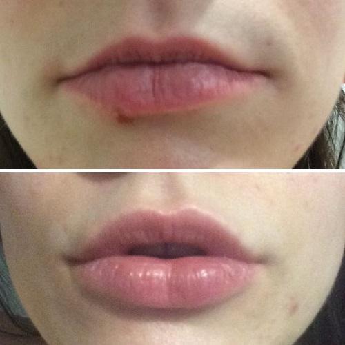 Коррекция формы губ в Краснодаре