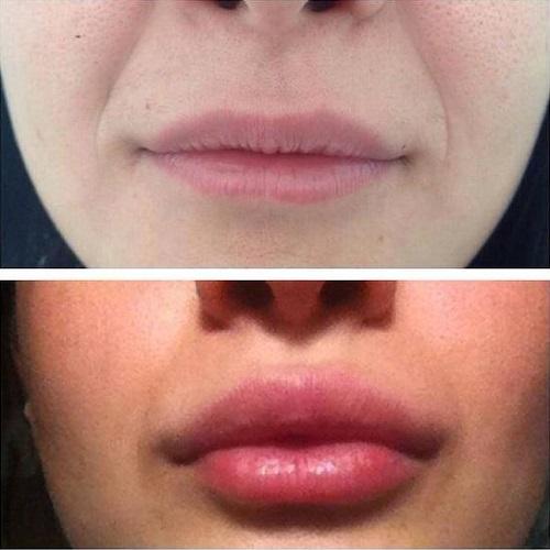 Коррекция формы губ в салоне Косметолог и Я
