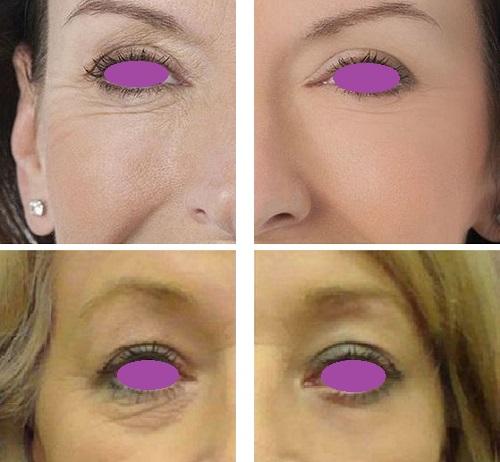 инъекции ботокса вокруг глаз в Краснодаре