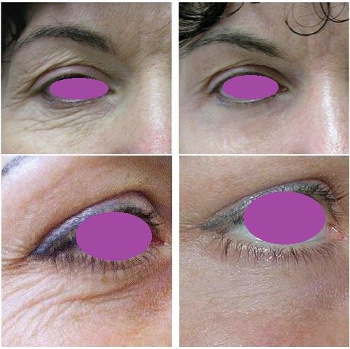 уколы ботокса вокруг глаз в Краснодаре
