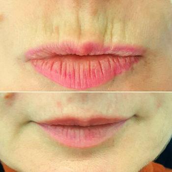 контурная пластика губ фото до и после 1 мл