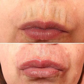 контур губ гиалуроновой кислотой до и после