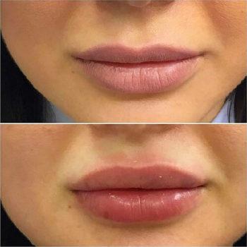 Цена на увеличение губ гиалуроновой кислотой