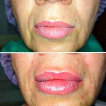 губы после контурной пластики
