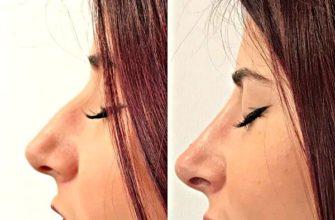 Цена на безоперационную ринопластику - коррекция носа филлерами 1