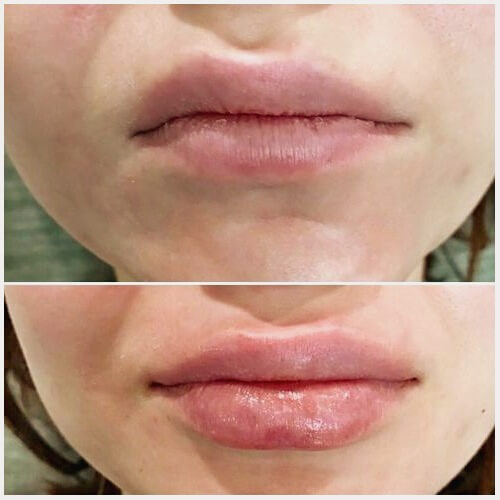 Цена на коррекцию асимметрии губ филлерами