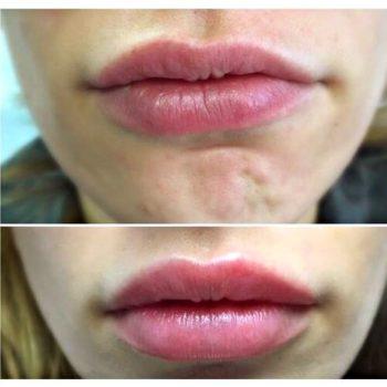 Цена на коррекцию асимметрии губ гиалуроновой кислотой