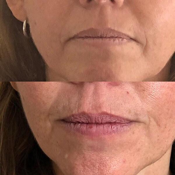 Фото Диспорт в губы до и после