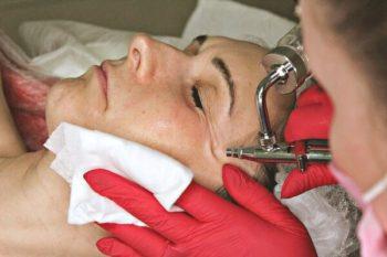 Газожидкостный пилинг лица у косметолога