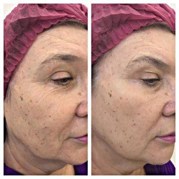 газожидкостный пилинг лица фото до и после