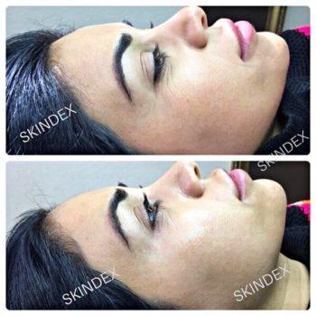 Безинъекционное омоложение кожи лица и тела Skindex до после