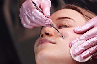 Чистка лица у косметолога в Краснодаре