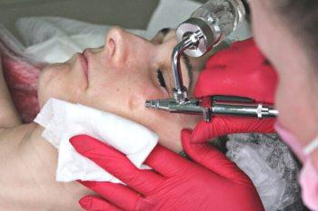 Омоложение кожи лица и тела Skindex