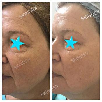 Омоложение кожи лица и тела Skindex до после