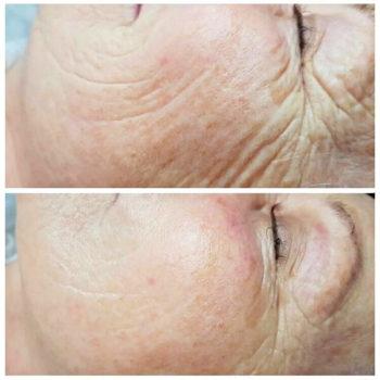 Процедура омоложения Skindex для кожи лица и тела