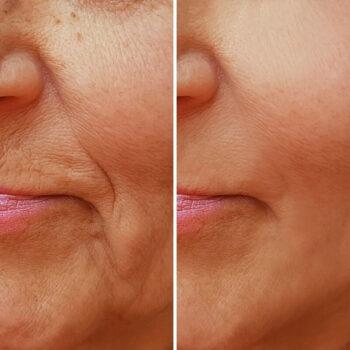 Радиесс векторный фото до и после