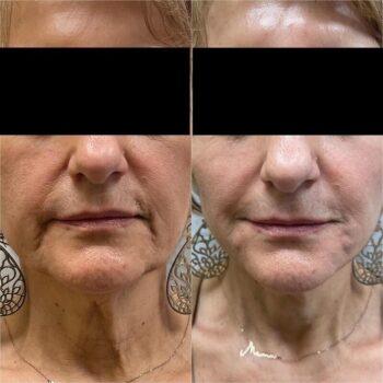 Радиесс векторный лифтинг фото до и после