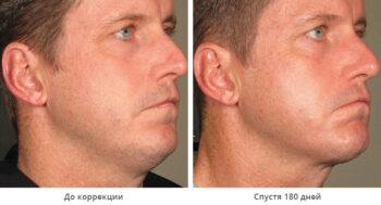 Альтера процедура для лица фото