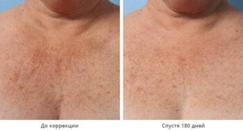 Альтера терапия фото до и после